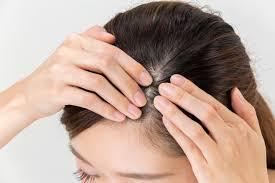 20代女性がなぜ薄毛にその原因と治るために必要な対策法7選ヘア