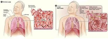 Copd Life Expectancy Chart Chronic Obstructive Pulmonary Disease Wikipedia