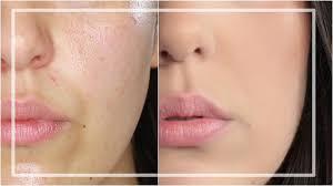 was verkleinert die poren