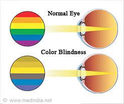 Eye Color Chance Chart Color Blindness Calculator Color Blindness Self Assessment Test