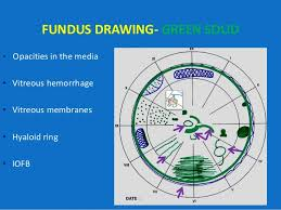 Fundus Chart Looking Deep Into Retina Indirect Ophthalmoscopy And