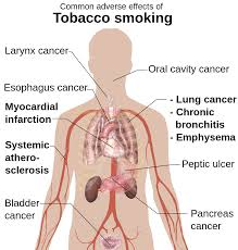file adverse effects of tobacco smoking svg  file adverse effects of tobacco smoking svg