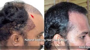 Hair Line Design Transplant Pin By Medispa India On Hair Transplant Center Hair