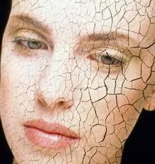 Resultado de imagem para pele ressecada