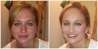 rosacea simple statement look rome ny makeup artist utica ny makeup artist syracuse ny makeup artist