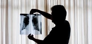 Resultado de imagem para Fantasma do amianto