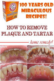 home remes to remove plaque and tartar