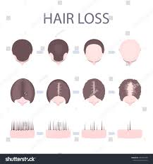 Male Pattern Baldness Stages Custom Ideas