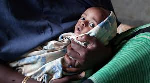 photo essay the green hunger  baby suffers from severe acute malnutrition in ksen
