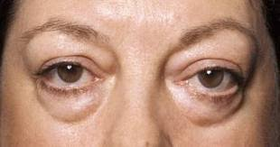 Puffy Eyelids causes and how to treat….   All about swollen eyes ...