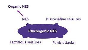 Non Epileptic Seizures Epilepsy Society