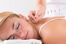 Image result for back pain acupuncture