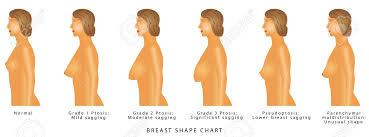 Breast Shape Chart Degrees Of Breast Ptosis Set With Woman