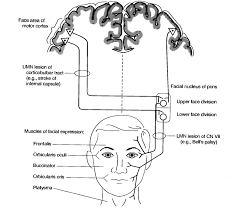 nerve palsy upper motor neuron google search