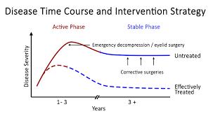 Eye Diseases Chart Thyroid Eye Disesase Patient Information