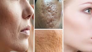 Poren verkleinern im gesicht