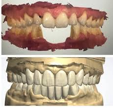Smile Design Dentistry Of St Petersburg 3863 Central Ave Dr Victoria Veytsman Porcelain Veneers Mimic A Natural