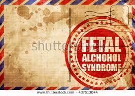fetal alcohol syndrome essay fetal alcohol syndrome essay 10306 words