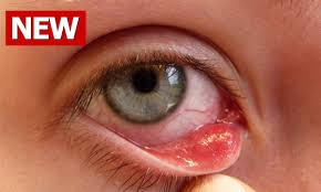 how to get rid of a stye stye treatment how to treat a stye eye stye treatment stye eye treatment you