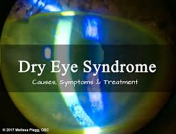 symptoms causes and treatment for severe dry eye syndrome healthproadvice
