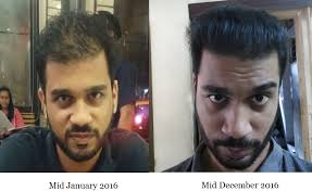 Male Pattern Baldness Cure Inspiration How I Started Reversing Male Pattern Baldness Naturally Regrow