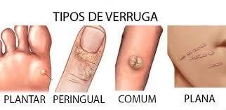 OzonoMed - Las verrugas comunes son pequeños bultos granulares en la piel  que aparecen con mayor frecuencia en los dedos o en las manos. Son ásperas  al tacto y también suelen presentar