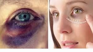 how to make black eyes bruises s fade heal faster in 5 diffe ways relief from