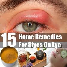 a stye is a kind of infection of eye that is characterized with pain itching and irritation around your eyes these ps called styes generally