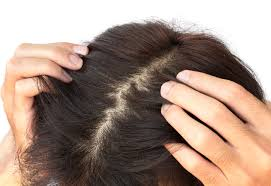 does an itchy scalp equal hair growth