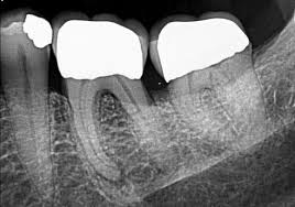 Teeth Setting Tooth Story 13 Setting Expectations For Your Patients