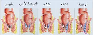 نتيجة بحث الصور عن علاج البواسير