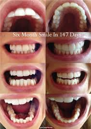 front teeth filing before and after. six month smile cosmetic braces before and after front teeth filing n