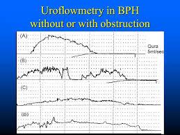 Uroflowmetry Under Fontanacountryinn Com