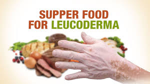 Supper Foods For Leucoderma Dr Nitika Kohli Aimil