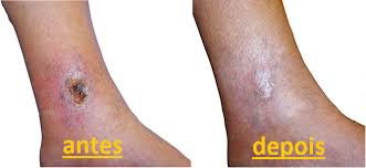 como curar ulcera na perna