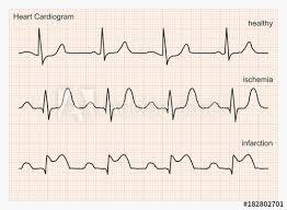 Three Types Of Cardiograms Healthy Heart Rhythm Ischemia