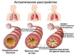 Контролируемая бронхиальная астма Состояние бронхов при астме