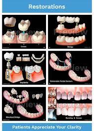 Dental Patient Consultation Illustrations