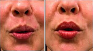 chicago botox cosmetic injections