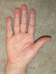фото руки запястье