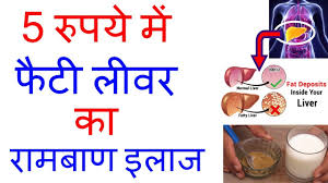 Diet Chart For Fatty Liver Grade 3