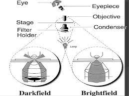 dark field microscopy dark field microscopy 1 by ehtisham ul haq