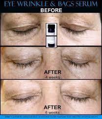 natural under eye wrinkle treatment
