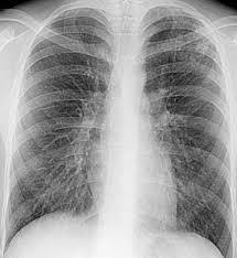Реферат Рентгендиагностика очагового туберкулеза com  Рентгендиагностика очагового туберкулеза Рентгендиагностика очагового туберкулеза