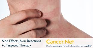 Skin Reactions to Targeted Therapy and Immunotherapy | Cancer.Net