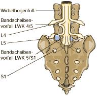 nervenwurzel s1