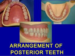 Teeth Setting 10 Posterior Teeth Arrangement