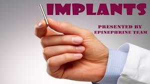Vantas Implant Implants