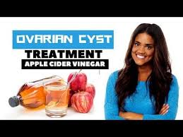 3 Natural Remedies for Ovarian Cysts That Actually Work - Ovarian ...