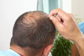 Unlike widespread hair loss, thinning hair doesn't necessarily cause baldness. Can Home Remedies Cure Baldness Hair Loss Restoration Replacement Connecticut